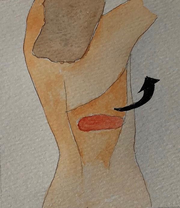 Muscle taken with skin island 2