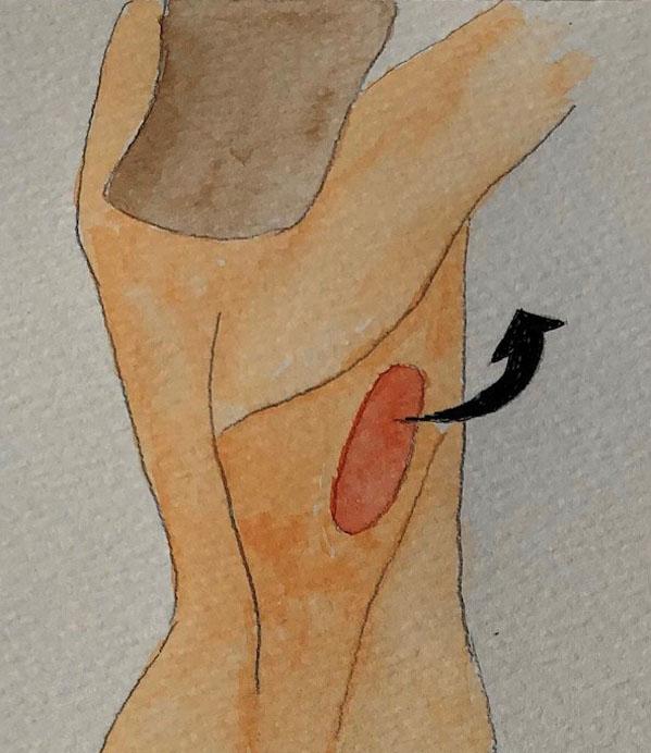 Muscle taken with skin island 1